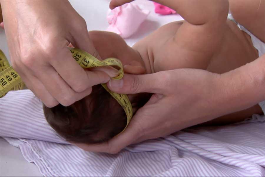 Estudo mostra que Zika continua a danificar o cérebro de bebês após o nascimento (Reprodução/TV Brasil)