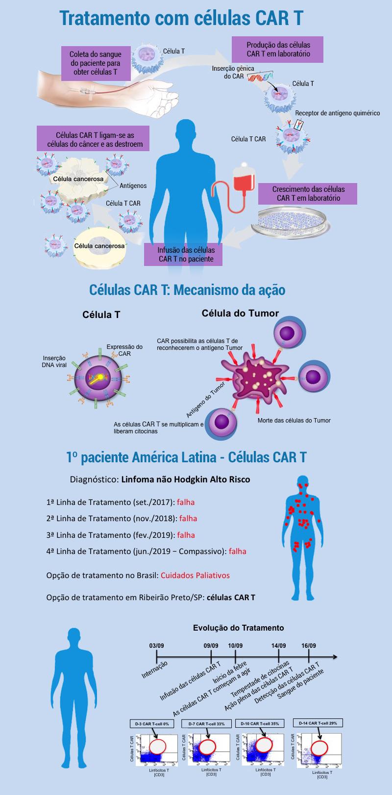 Médicos da USP aplicaram pela primeira vez imunoterapia que usa células T do paciente para tratar linfoma gravíssimo (Fonte: Jornal da USP)