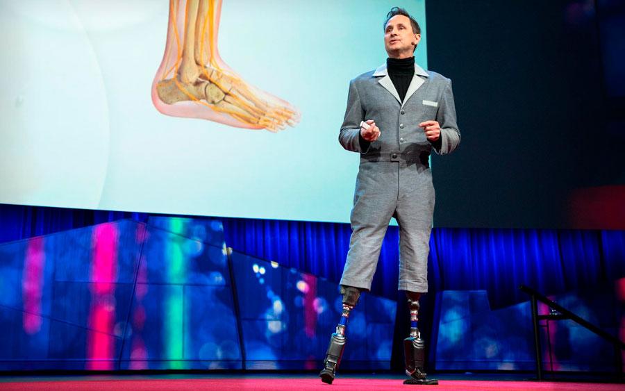 Você trocaria seu corpo por um novo artificial melhor?