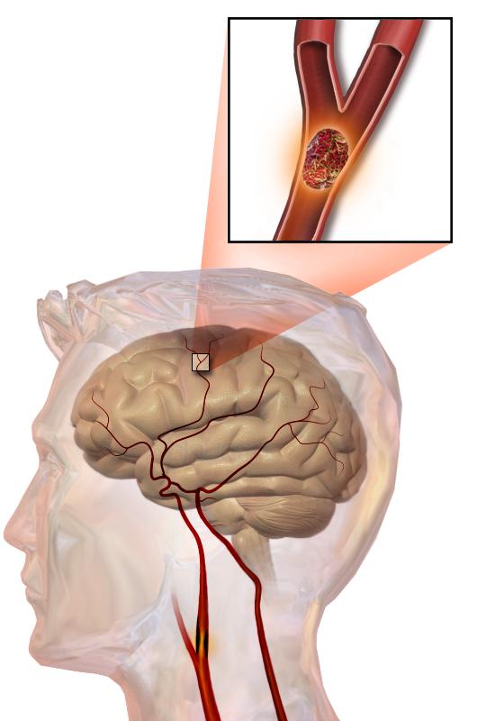 Ilustração de um acidente vascular cerebral embólico, mostrando um bloqueio alojado em um vaso sanguíneo. - Blausen Medical Communications, Inc.