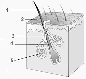 1. Pelo 2. Superfície da pele 3. Sebo 4. Folículo piloso 5. Glândula sebácea